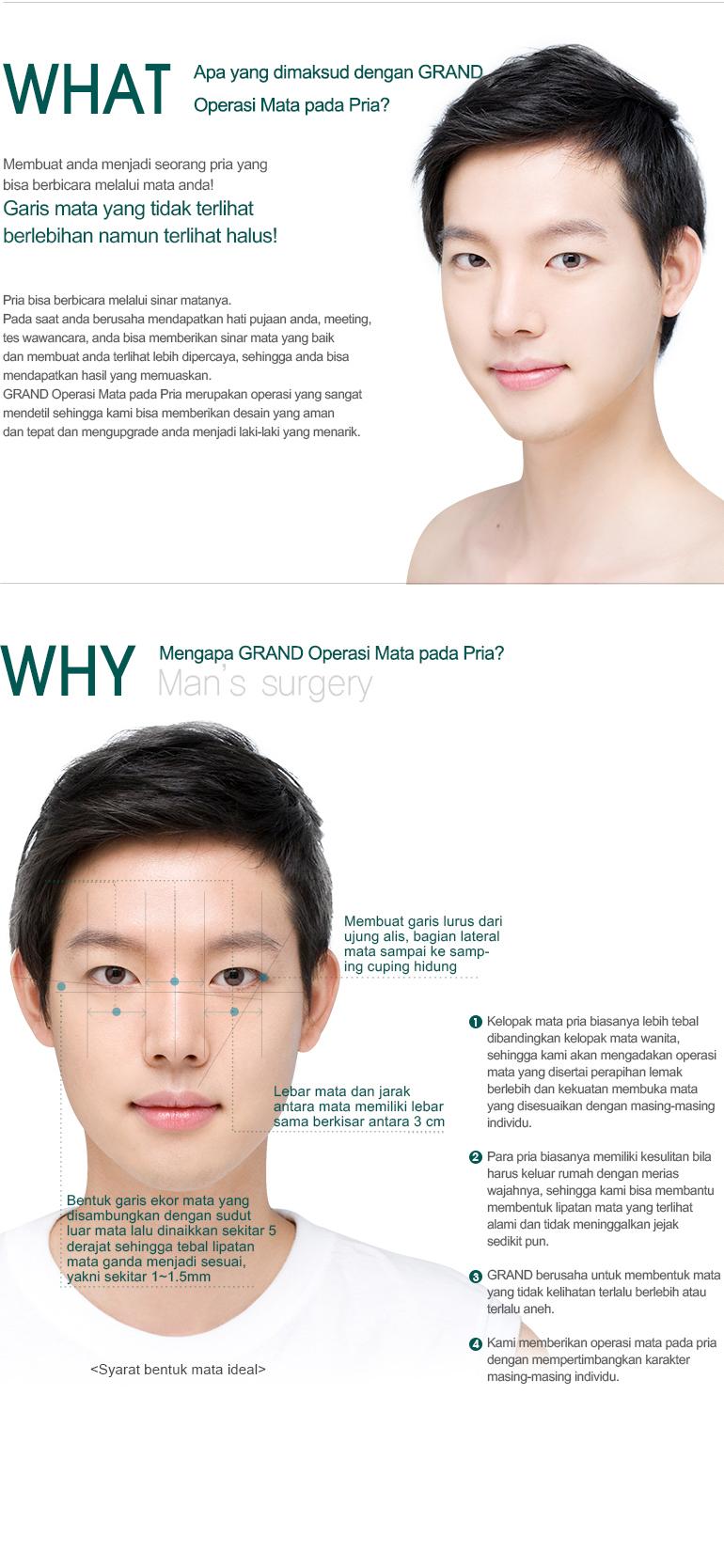 Operasi Mata untuk Pria